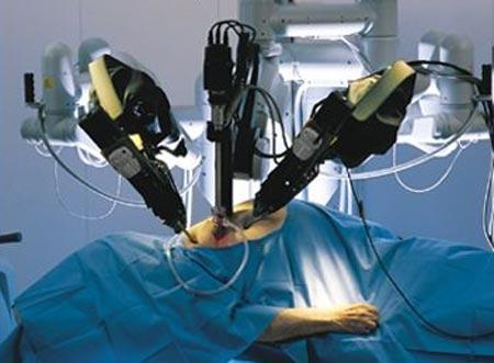 Al Gemelli con il robot Da Vinci si opera la tiroide di una paziente senza lasciare segni sul collo