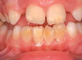 Denti a macchie, ecco la malattia dei bambini degli anni Duemila