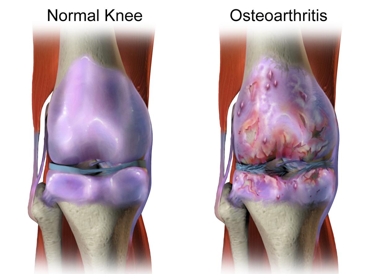 Osteoartite: Finalmente disponibile e accessibile la vera medicina rigenerativa