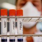 Coronavirus, nel Lazio 19 nuovi casi
